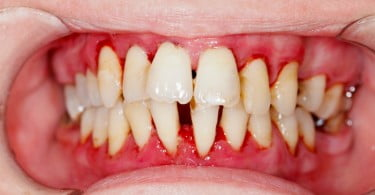 Human mouth after dental treatment - clean of tartar.