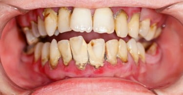 Human mouth before dental treatment plaque on teeth.
